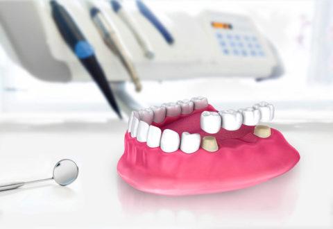 Bridge Dentaire Turquie